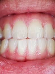 Zoek jij nog een tandarts in de regio van Eindhoven?