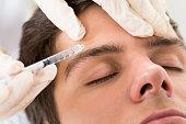 Alles over een botox behandeling in Flevoland